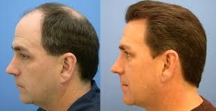 hair-implant
